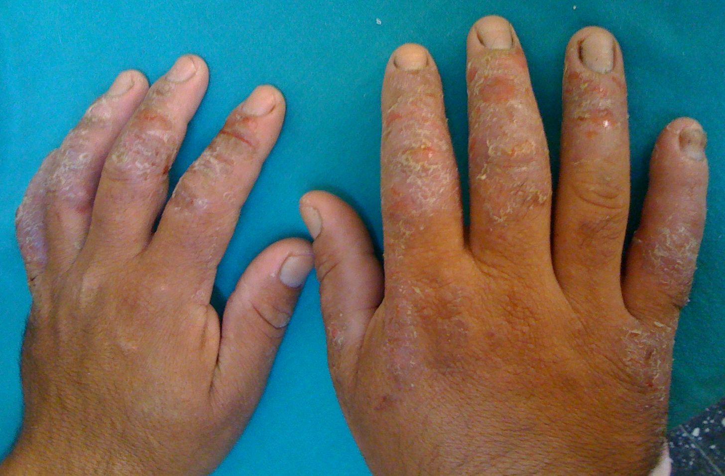 Latex allergy